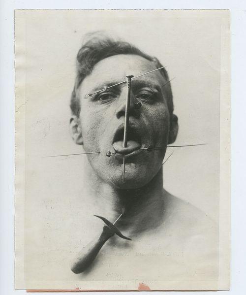 1930's The Pierced Man, a circus performer.