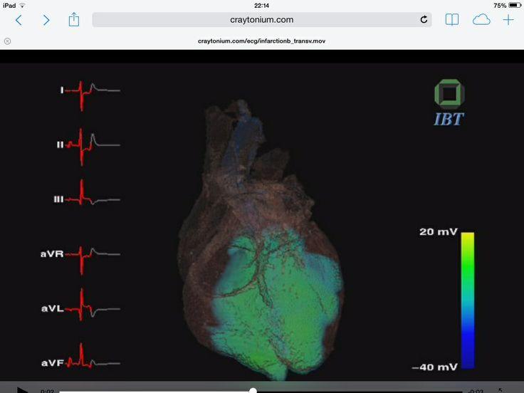 False color ECG simulation!