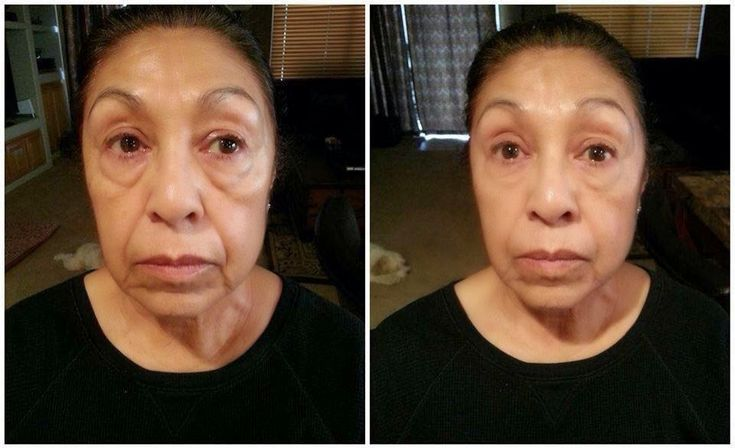 #instantlyagless #before #after #pic #what #a #difference #bags #are #gone
