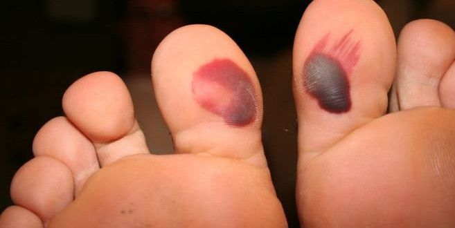 How to Get Rid of Blood Blister?