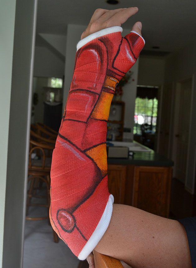 Best Broke Images On Pinterest Broken Arm Cast Broken Leg - 15 brilliantly decorated casts well worth broken bones