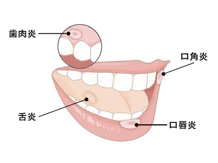 専門医に聞く そもそも口内炎とは何か 2020 医療 健康 専門医