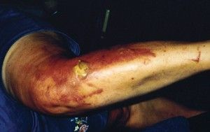 Burn Blistering Rash. | http://www.woolx.com/