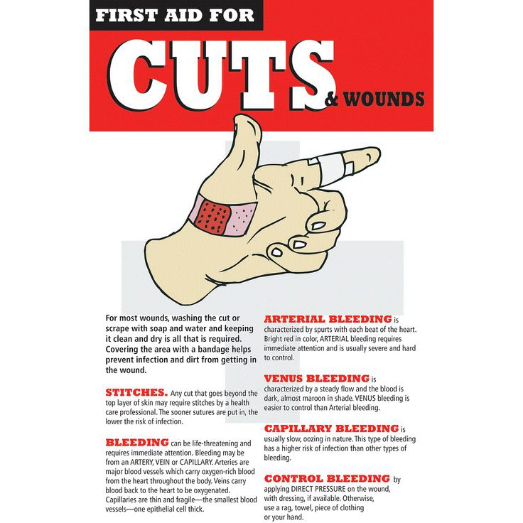 First Aid for Cuts and Wounds. Here we teach you what to do in case someone is cut or has a wound and what products should you use to stop the blood: http://insidefirstaid.com/emergencies/bleeding/how-to-stop-a-cut-from-bleeding-using-soft-t-tourniquet-israeli-bandage-dermabond-and-more #cuts #first #aid #wounds #bleeding #bleeding #stop #blood