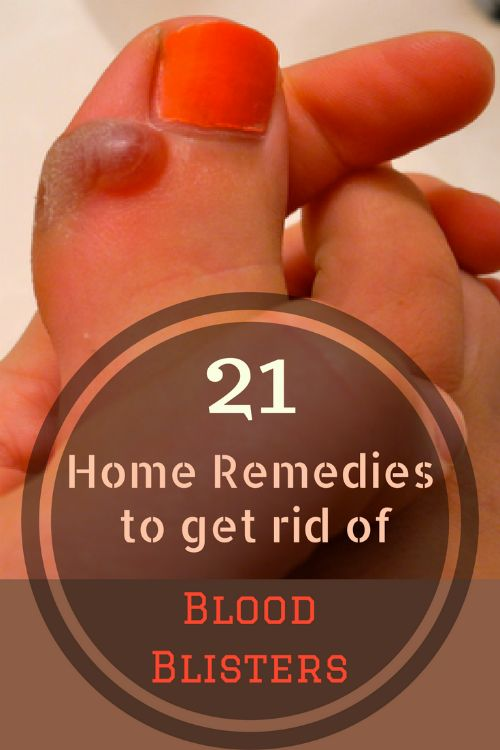 home remedies to get rid of blood blisters
