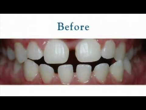 Mesa, AZ Orthodontic Family Orthodontist Treatment for Adults