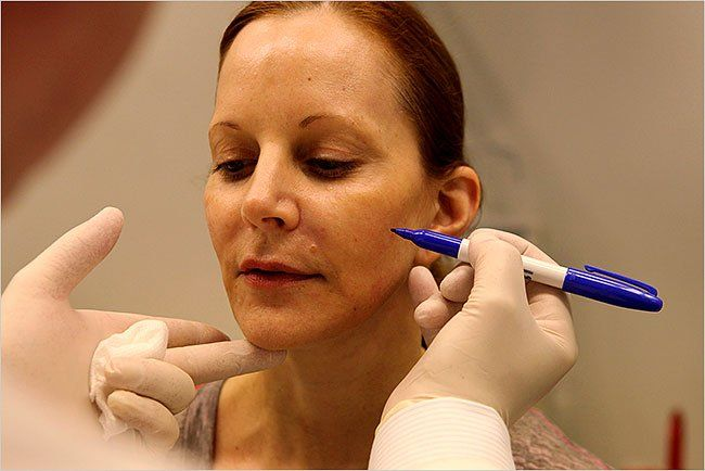 A Facial Filler Needs a Dose of Patience - Sculptra - The New York Times