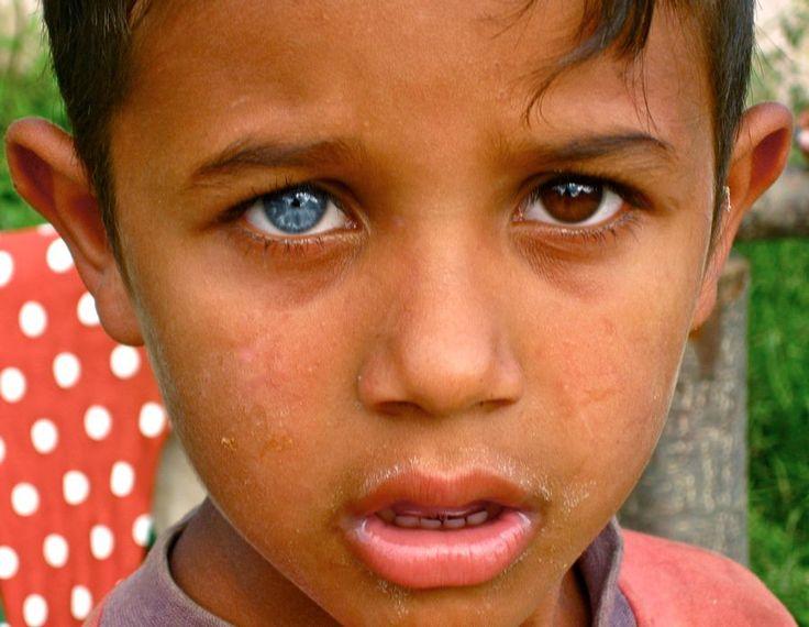 Heterochromia of the eye (heterochromia iridis or ...
