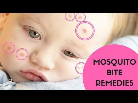 #HealthyLivingTips How to Treat Insect Bites - Mosquitoes and Bug Bites Treatment... #NaturalCure #Health