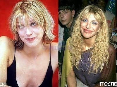 22 Most Shocking Celebrity Before And After Plastic Surgery Shots #LipFillersSha…