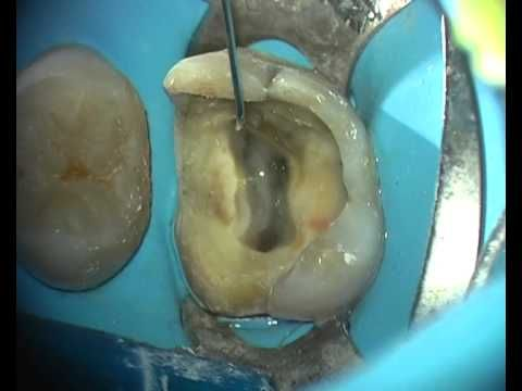 Endodoncia Primer Molar Superior (Conductos Curvos) - YouTube