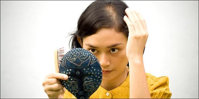 Πότε γίνεται ανησυχητική η τριχόπτωση; Γιατί πάσχουν και οι γυναίκες; Ποια είναι τα συχνότερα αίτια και πώς αντιμετωπίζεται αποτελεσματικότερα; Η απάντηση βρίσκεται στις κατάλληλες εξετάσεις και στις συμβουλές των ειδικών. Για τις γυναίκες η τριχόπτωση επιφέρει ακόμα πιο μεγάλη αναστάτωση και στεναχώρια, καθώς, σε αντίθεση με τους άνδρες, μπορεί να συμβεί σε οποιαδήποτε ηλικία και η απώλεια των μαλλιών να γίνει ανομοιόμορφα και κατά τόπους. #trixoptosi #gunaikeia