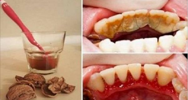 How To Remove Tartar From Your Teeth With The Help Of Just One Ingredient We All Have At Home