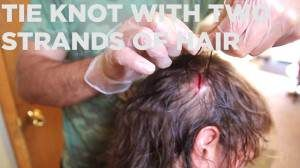 The Homestead Survival | How to Super Glue a Head Wound (w/Hair) | http://thehomesteadsurvival.com