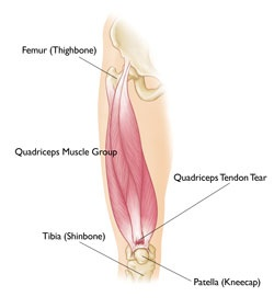 Quadriceps Tendon Tear   http://www.osmsgb.com/Education.aspx  #kneeinjury #quads #toretendons
