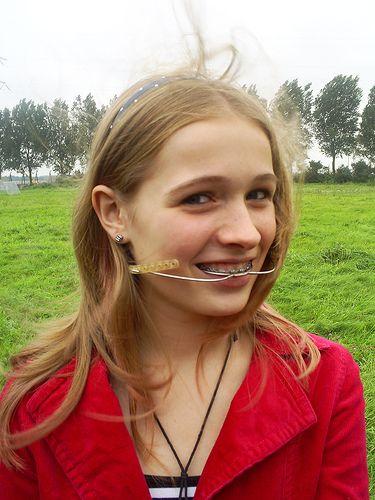 #braces #girlswithbraces #metalbraces #headgear   Zahnspange, Zähne