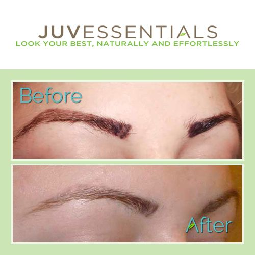 If you have an eyebrow tattoo that you're not happy with that needs to be removed, JuvEssentials​ offers the safest and most effective tattoo removal options for the face that laser tattoo removal may be unsuitable for.  #TattooRemoval #TattooCorrection #JuvEssentials