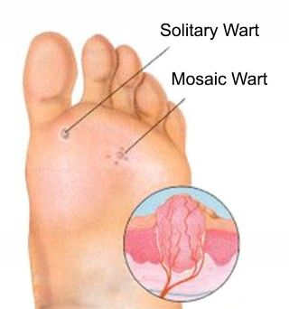 Natural Way To Treat A Planters Wart