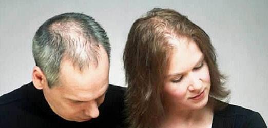Erkek ve Kadında Saç Dökülmesi, saç hastalığı, saç dökülmesi