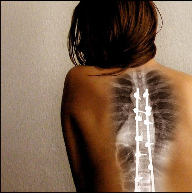 Back Surgery Types Pros And Cons