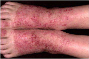 Obat herbal dermatitis kontak adalah cara terbaik untuk anda yang ingin cepat sembuh. Ialah qnc jelly gamat, ampuh mengatasi penyakit kulit secara alami