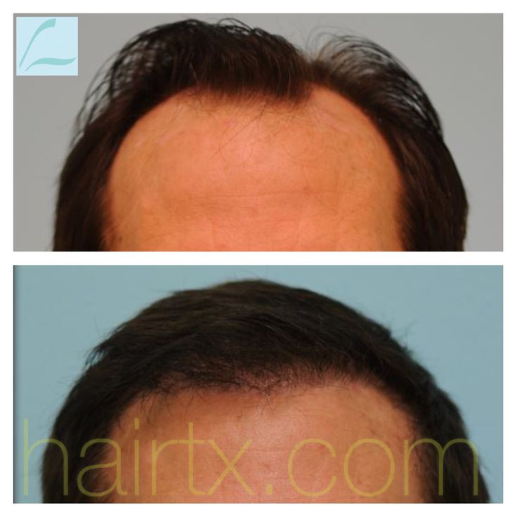 Hair Transplant Result for fronto-temporal recession and loss of frontal hairline