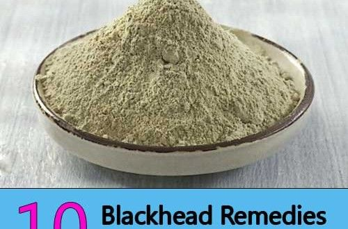 Blackhead Treatments: 10 Simple Home Remedies for Clearer Skin