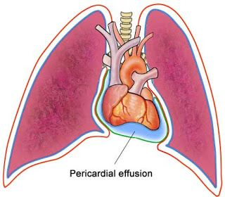 The 25+ best Pericardial effusion ideas on Pinterest
