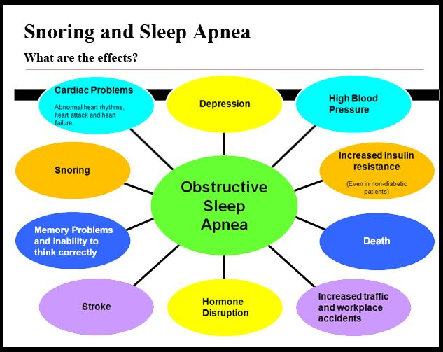 """""""DON'T USE CPAP ONE MORE NIGHT UNTIL YOU READ THIS GUIDE ON PROVEN SLEEP APNEA CURES"""" http://smb06.com/cure-your-sleep-apnea-without-cpap"""