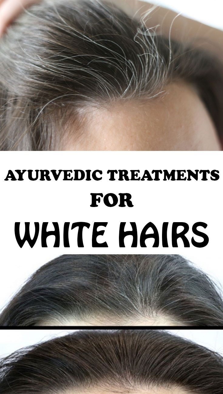 White hairs are a torment for many women. Here are the best Ayurvedic remedies for prevention of white hair and restoring the natural color of hair!