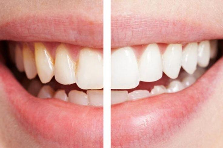 Une incroyable technique naturelle pour se blanchir les dents en seulement 2 minutes!