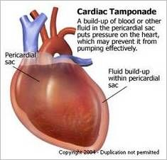 Cardiac Tamponade Cardiac tamponade is a compression of the heart that occurs when blood or fluid builds up in the space between the myocard...