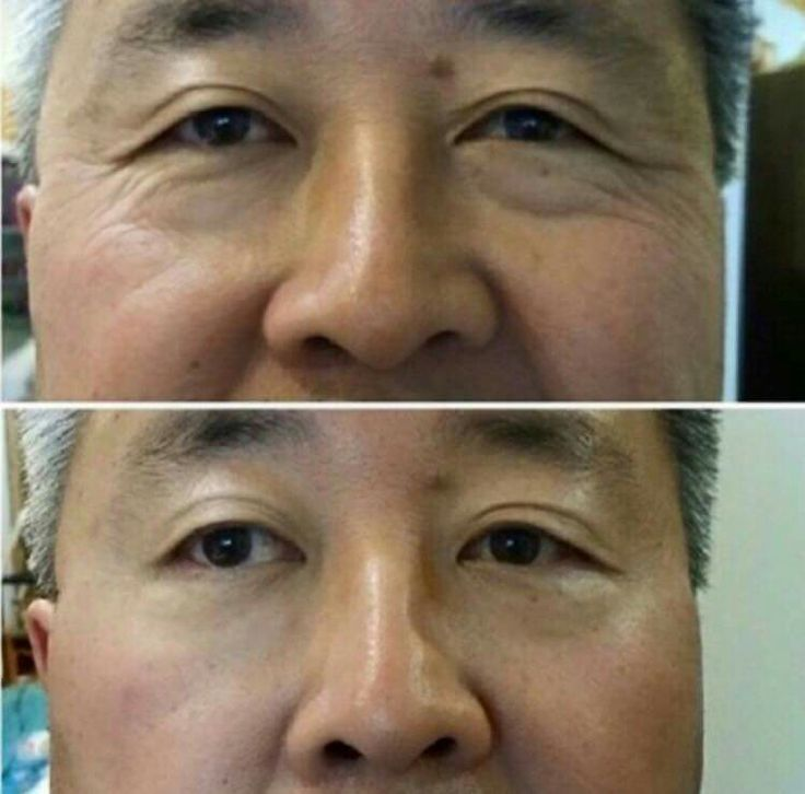 WOW where did those lines, wrinkles and bags go??? Wrinkle and bag free for 8-10 hours, and did you know it also improves those wrinkles over time!!  Buy a full box OF 25 UK or 50 USA http://saynotowrinkles.uk/   Try a sample from here: http://cheapinstantlyageless.com/ Full product line: http://www.agelessrevolutionuk.jeunesseglobal.com/ Friends request me: https://www.facebook.com/agelessrevolutionuk Lifestyle and Business coaching,  http://www.gillfosterlifestylecoach.com/