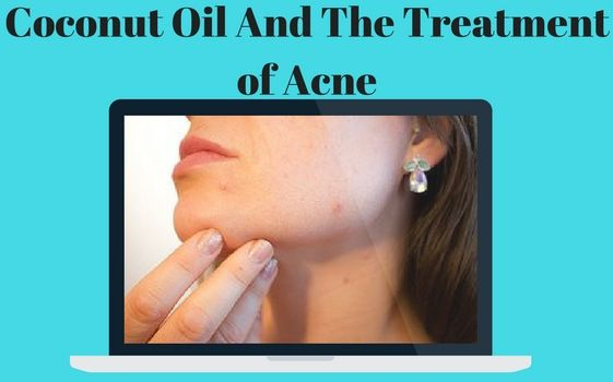 Many people have problems with acne and don't know how to act upon it.  Did you know that coconut oil has properties making it ideal for treating acne. Read more about it now!
