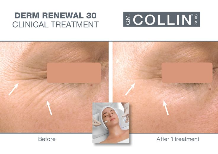 G.M. Collin Derm Renewal 30 Peel - Before & After picture #beauty #cosmetics #skincare #clinical #clinicaltreatment #spa #spatreatment #peeling #antiaging #wrinkles #finelines #DermRenewal #DermRenewalPeel #gmcollin #gmcollinparis #gmcollinskincare