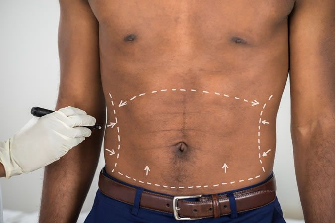 A Complete Guide To Popular Men's Cosmetic Surgery Procedures #chest #male #skin…