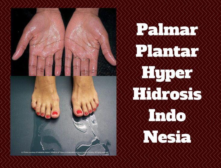 Palmar & Plantar Hyperhidrosis, Apaan Tuh? Terapi Ionto @ IHHC Tangerang Mengeringkan Hyperhidrosis Indonesia Sejak2009