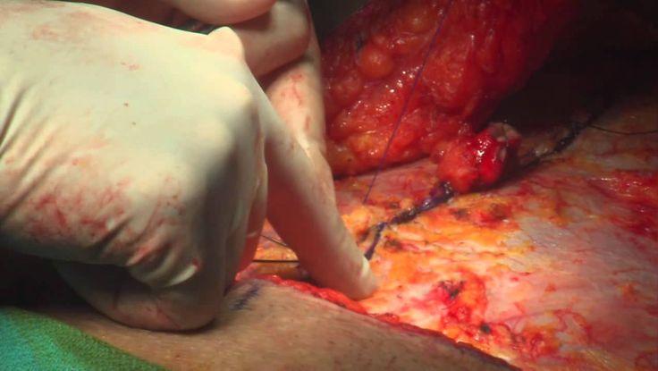 Miami Plastic Surgery - Tummy Tuck (Abdominoplasty) Surgery with Dr. Mic...
