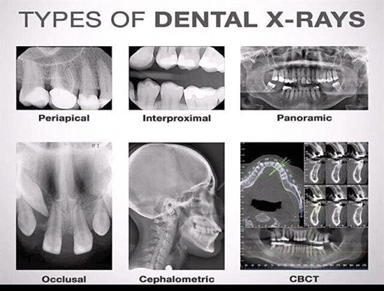 Dentaltown - Types of Dental X-Rays