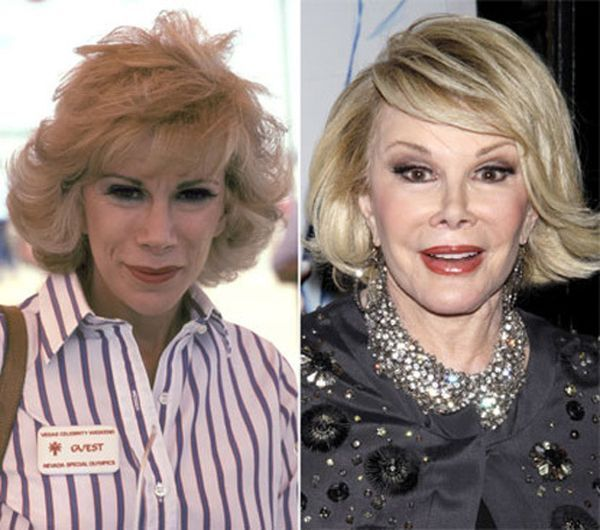 Celebrity plastic surgery faces before after8 Celebrity plastic surgery faces: b… – –
