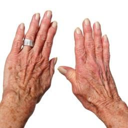 What is arthritis? What causes arthritis? - Medical News Today