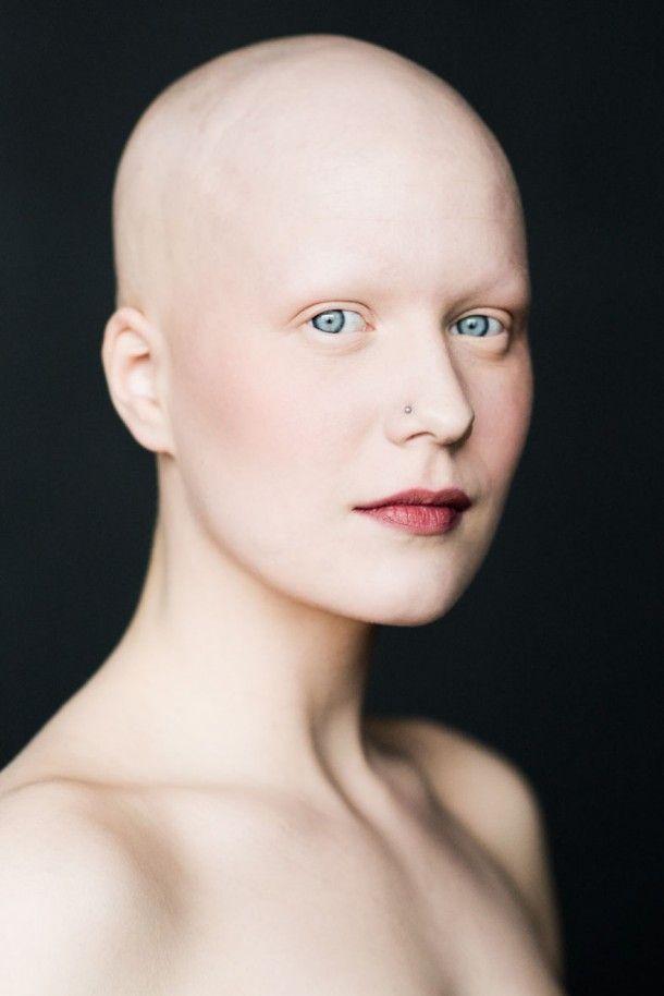 Prachtige fotoserie van kale vrouwen om te breken met 'gender stereotypes'