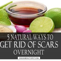how to get scars off your face overnight