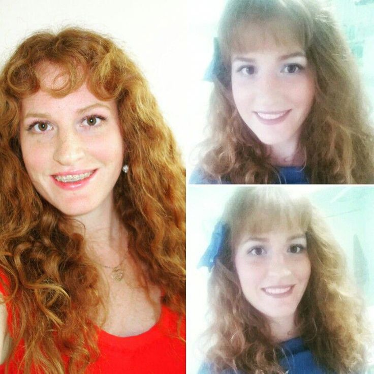 Before left and after right pics of my teeth with and