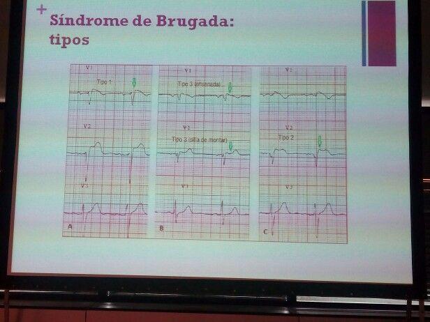 Tipos de síndrome de Brugada #arritsemes15 #SEMES2015