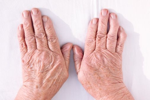 Rheumatoid arthritis life expectancy study