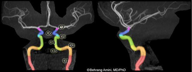 Internal Carotid Artery Segments labelled