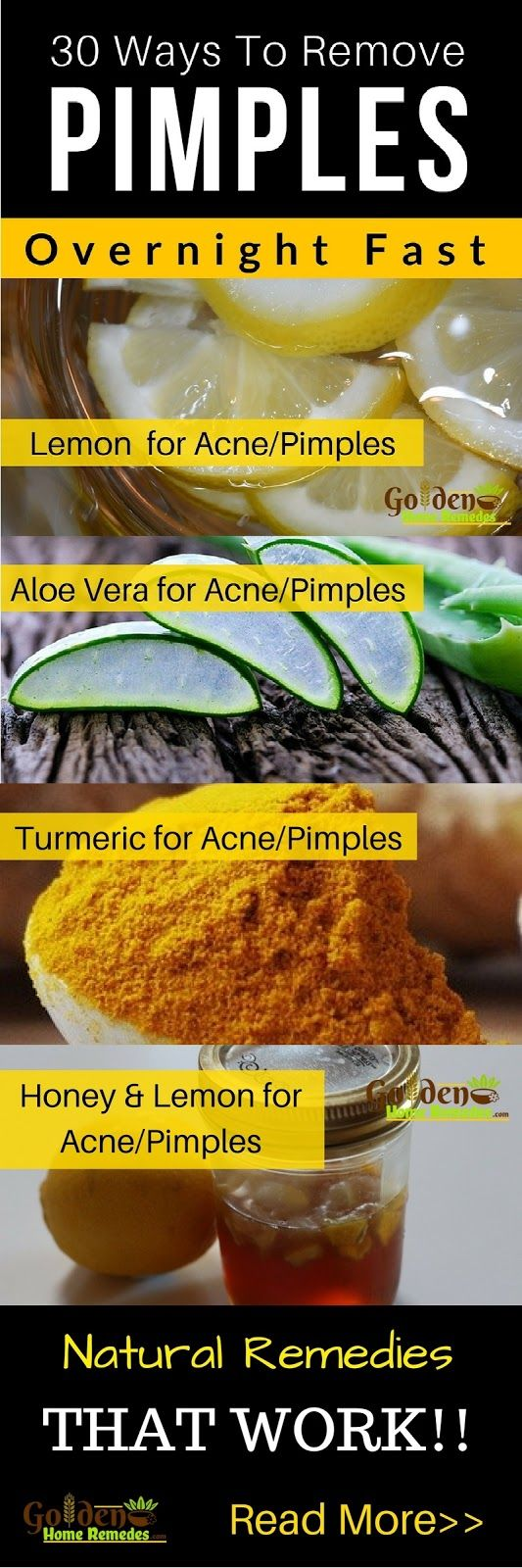 Pimples, Acne Treatment, 30 Natural Remedies To Get Rid Of Pimples Overnight Fast, Home Remedies For Pimples, Pimples Causes and Symptoms, Pimples Treatment, Pimples can occur on the face, neck, back, and shoulders which make us feel bad or self-conscious. Trying natural ingredients for removing pimples from skin has proved to be very helpful. We have come up with 30 do-it-yourself natural home remedies that will help remove pimples with minimal side effects. Read More...