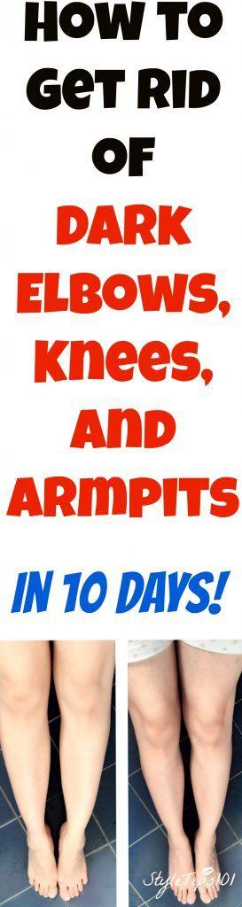 get rid of dark elbows, knees, and armpits