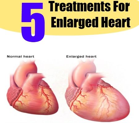 How To Naturally Cure An Enlarged Heart